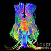 Brain Fiber Tracts, Dti Scan Poster
