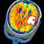 Brain Tumour, 3d-mri Scan Poster by Pasieka
