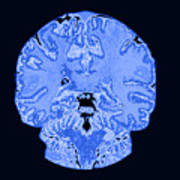 Coronal View Mri Of Normal Brain Poster by Medical Body Scans