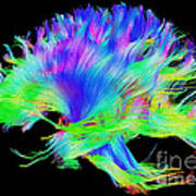 Fiber Tracts Of The Brain, Dti Poster