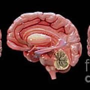 3d Rendering Of Human Brain Poster