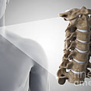 Cervical Vertebrae Poster