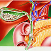 Artwork Of Gallstones In Gall Bladder & Bile Duct Poster