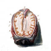Brain, Anatomical Illustration, 1802 Poster