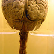 Brain Drain Poster
