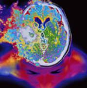 Brain Malfunction Poster