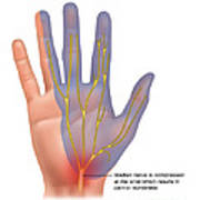 Carpal Tunnel Syndrome, Illustration Poster