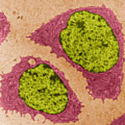 Chondrocytes, Tem Poster