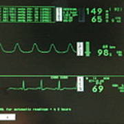 Ecg Monitor Screen. Poster