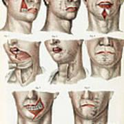 Facial Surgery, Illustration, 1846 Poster