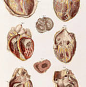 Heart, Cavities And Valves Poster