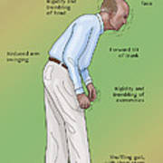 Man With Parkinsons Disease Poster