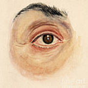 Melanoma Of Iris, Medical Illustration Poster