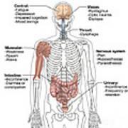 Multiple Sclerosis Symptoms Poster