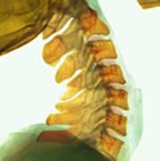 Neck Vertebrae Flexed, X-ray Poster by