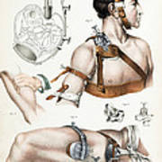 Operative Surgery, Illustration, 1846 Poster