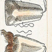 Prosthetic Noses, Ambroise Pare, 1561 Poster