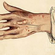 Psoriasis Guttata, Illustration, 1887 Poster