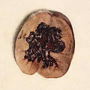 Renal Blood Clot, Kidney, Illustration Poster