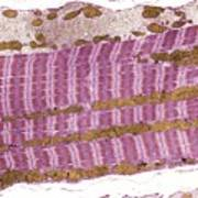 Skeletal Muscle And Tendon, Tem Poster