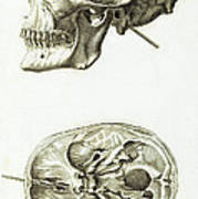 Skull With Head Wound, Illustration Poster