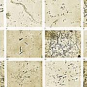 Various Bacilli Observed By Robert Koch Poster