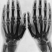 X-ray Of Two Normal Hands, 1896 Poster