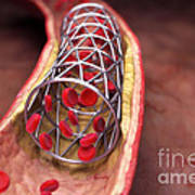 Arterial Stent Art Print