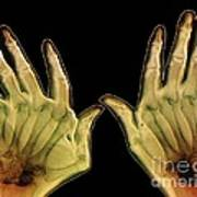 Arthritic Hands, X-ray Art Print