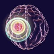 Brain Cancer Treatment Art Print