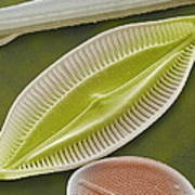 Diatom, Sem Art Print by Power And Syred