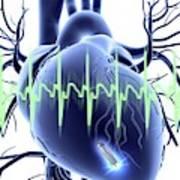 Heart With Leadless Cardiac Pacemaker Art Print