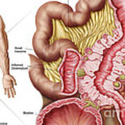 Illustration Of Diverticulosis Art Print by Stocktrek Images