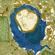 Macrophage Engulfing A Nerve Cell, Tem Art Print