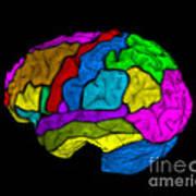 Mri Of Normal Brain Art Print