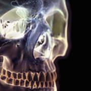 The Skull And Paranasal Sinuses Art Print