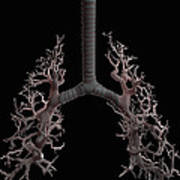 Bronchial Branches Art Print