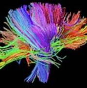 White Matter Fibres Of The Human Brain Art Print