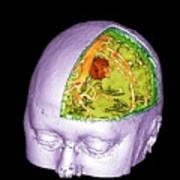 Brain Tumour Art Print