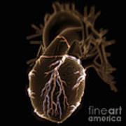 Coronary Blood Supply Art Print