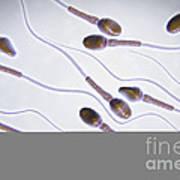 Human Sperm Art Print