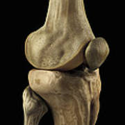 Knee Bones Right Art Print