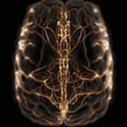 Brain With Blood Supply Art Print