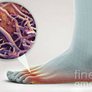 Athletes Foot Art Print