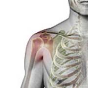 Bones Of The Shoulder Art Print
