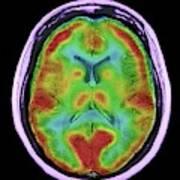 Normal Brain Blood Flow Art Print
