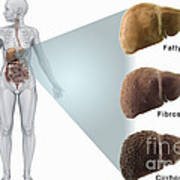 Stages Of Liver Disease Art Print