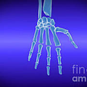 X-ray View Of Human Hand Art Print