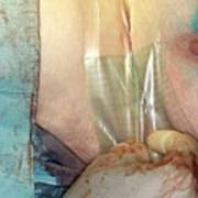 Breast Cancer Surgery Art Print