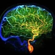 Brain Blood Vessels Art Print
